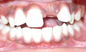 dental case report example