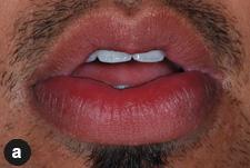 gonflement lèvre supérieure bouche