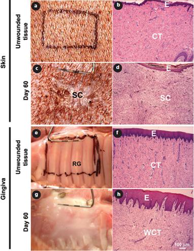 Exploring Scarless Healing of Oral Soft Tissues | jcda