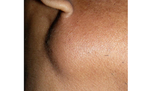 Parotid Lymphoepithelial Cysts as an Indicator of HIV