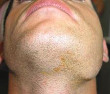 infection dentaire ganglion machoire