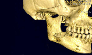Chronic Osteomyelitis Following An Uncomplicated Dental Extraction Jcda