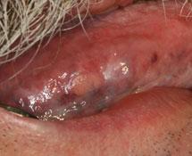 Masse linguale chez un patient atteint de lichen plan buccal | jcda