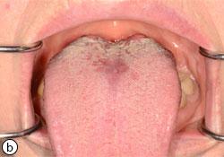 zona buccal symptomes