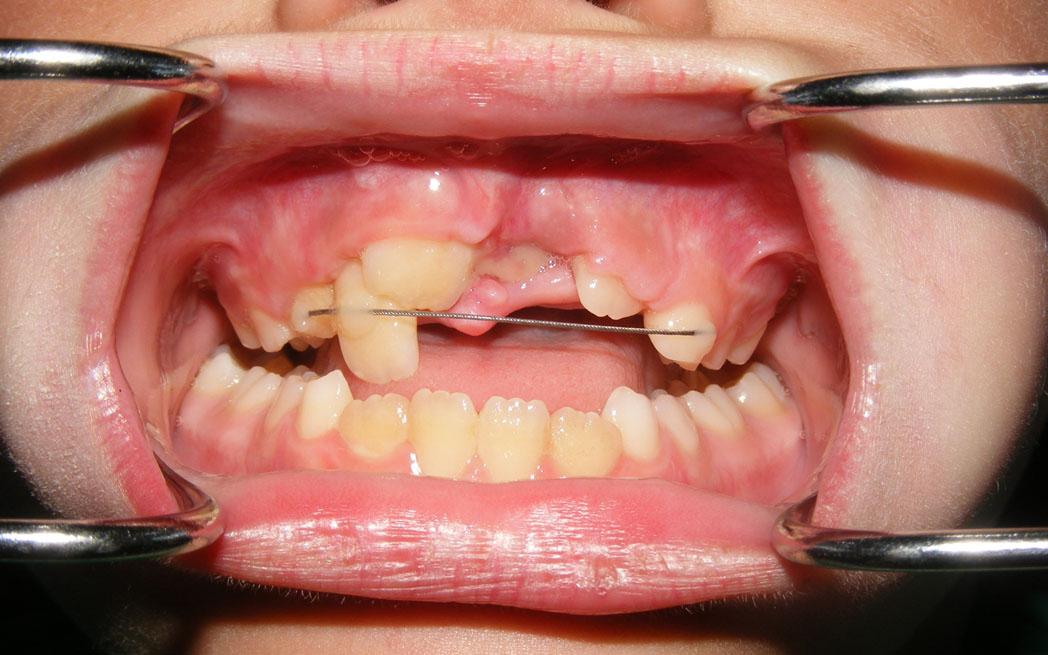 Appareils Orthodontiques Fixes Pour Traiter De Graves