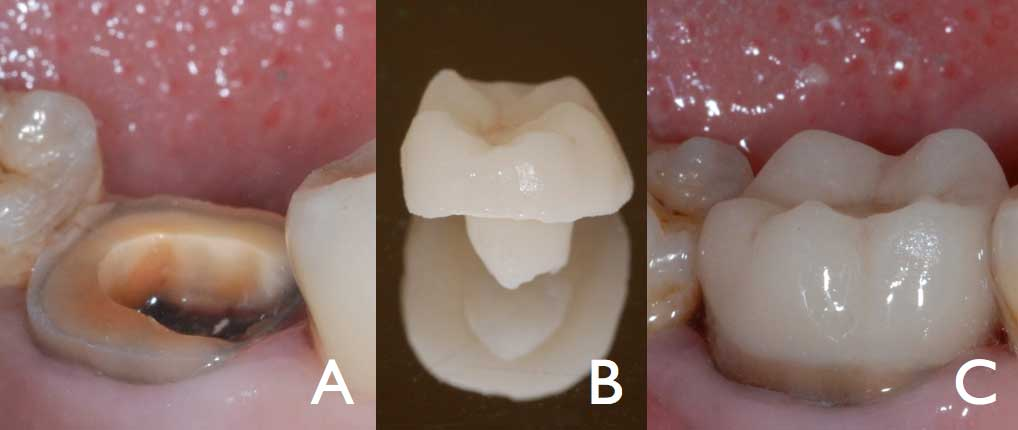 The Endocrown: A Different Type of All-Ceramic