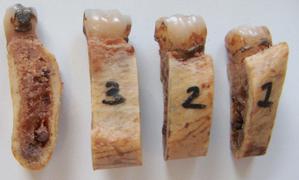D termination de la position du nerf dentaire inf rieur for Blessure levre interieur