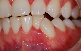 Managing Patients with Necrotizing Ulcerative Gingivitis | jcda