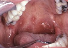 ulcère buccal traitement