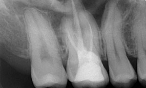 Failure of Root Canal Treatment Misdiagnosed as Neuropathic