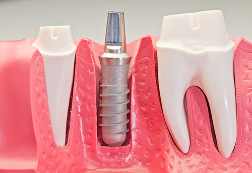 Dental Implant Manufacturers Usa