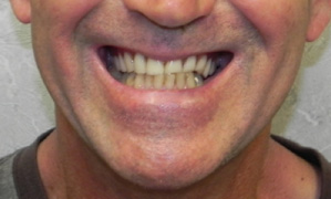 Reconstruction Of The Temporomandibular Joint After Surgical
