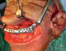 Reconstruction Of The Temporomandibular Joint After