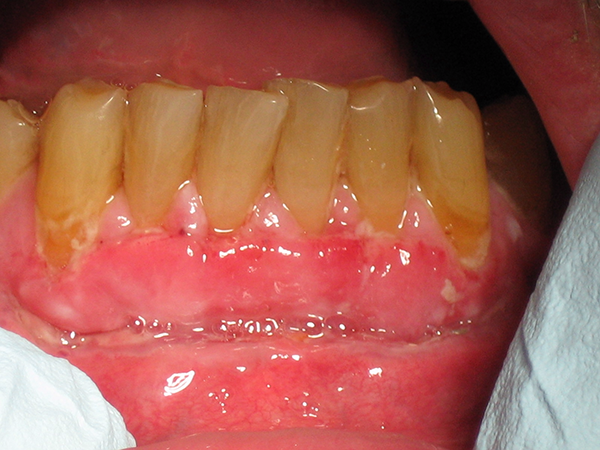 Managing Patients with Gingival Graft Failure or Loss | jcda
