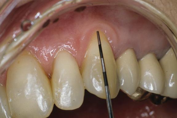 Know a if gum do failed graft you how gum graft
