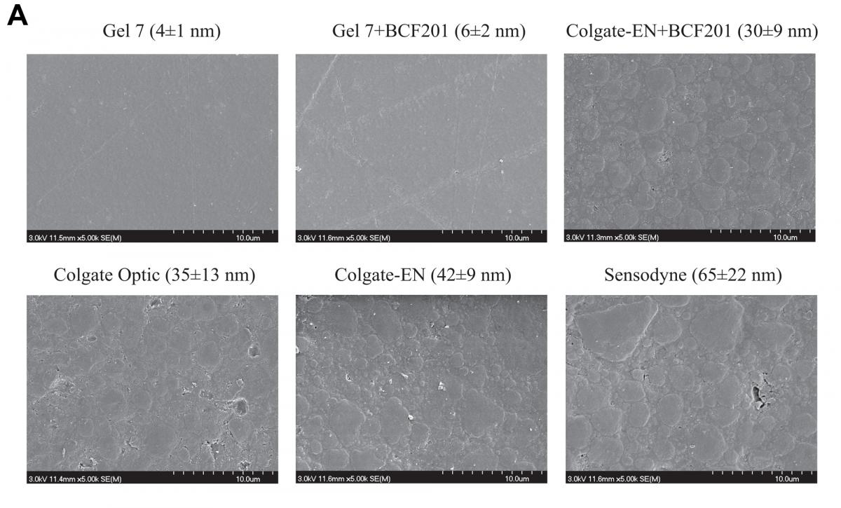 figure 5 A- Scanning electron microscope images of representative samples of resin-based composite