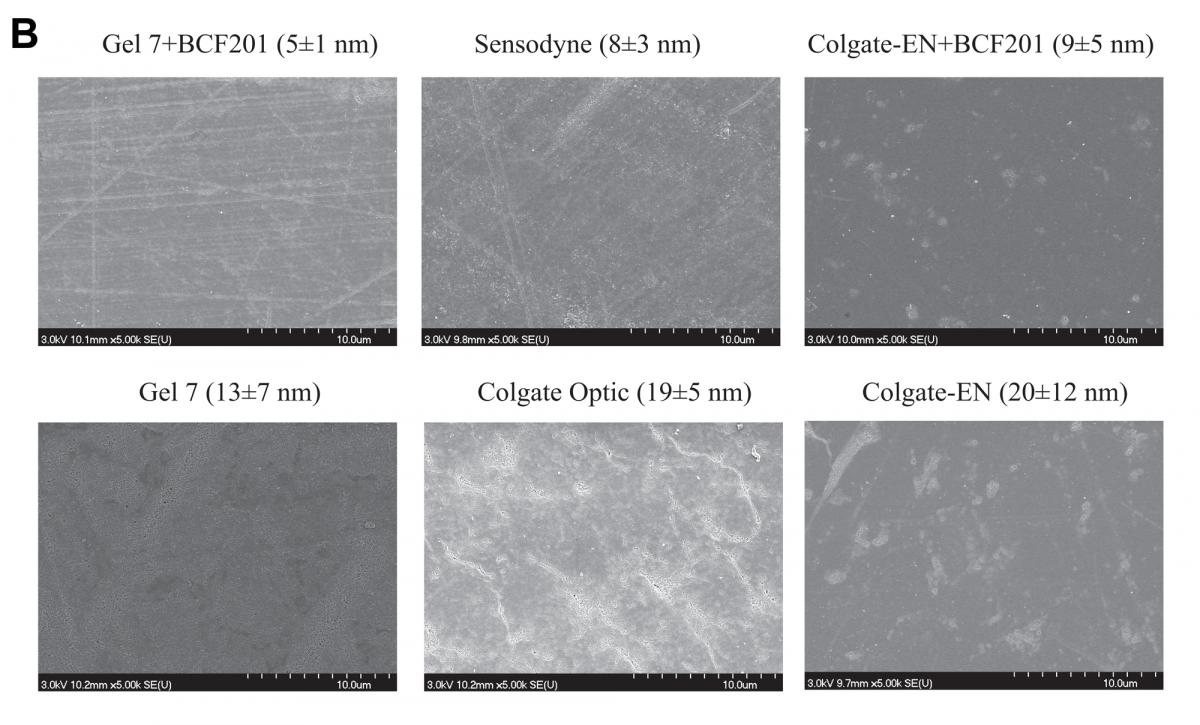 figure 5 B- Scanning electron microscope images of representative samples of enamel
